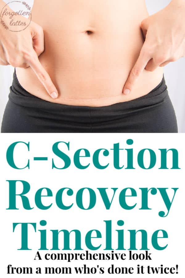 a woman pointing to her c-seciton scar, the text below reads c-section recovery timeline, a comprehensive look from a mom who's done it twice!