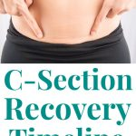"""image of a woman's stomach, she is pointing to a c-section scar directly above her pants line and below her belly button; text below the image reads """"C-section Recovery Timeline A comprehensive look from a mom who's done it twice!"""""""